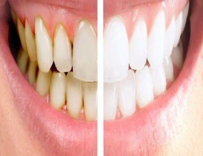 He Mixed 2 Ingredients And Put Them On His Teeth, What It Does? I'm Trying This – Healthy To Fit