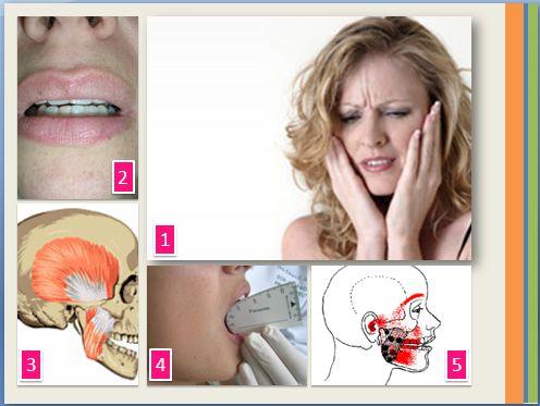 figura sinais e sintomas de DTM