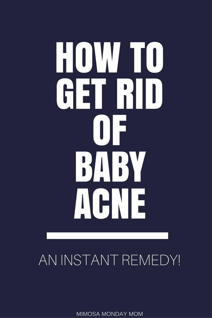 #BabyAcne can be stressful for #FirstTimeMoms! This #InstantRemedy will help you rid the #BabyAcne and get back those smooth baby cheeks we all love to pinch!