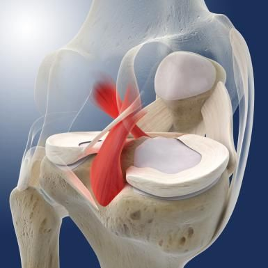 PCL Tear: How to Treat this Painful Injury: An image of the back of the knee showing the posterior cruciate ligament (PCL).