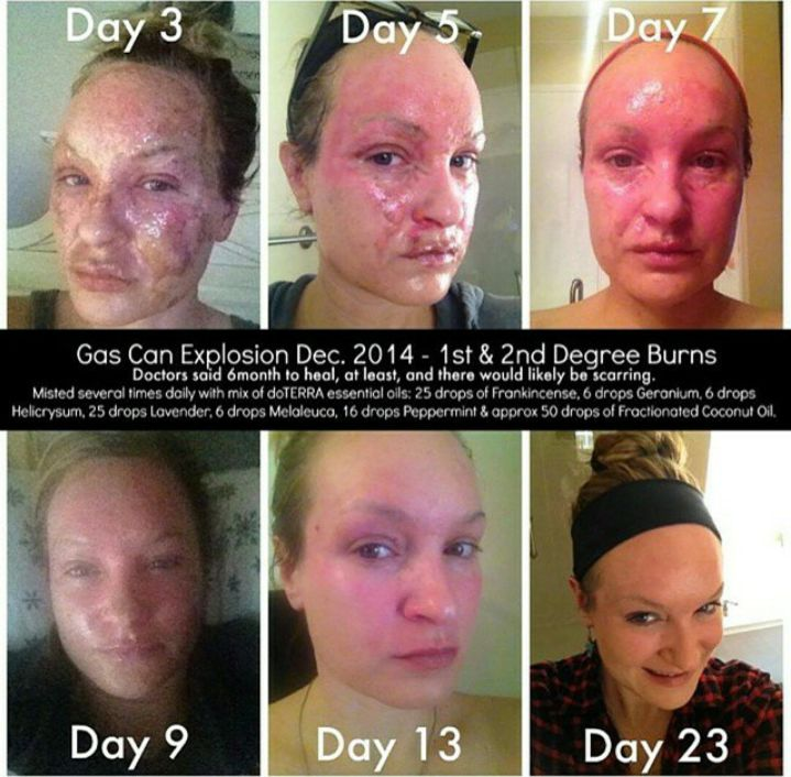 Gas Can Explosion Dec. 2014- 1 & 2nd Degree Burns. The Doctors told her that it will take her 6 months to heal, at least, and there would likely be scarring. She misted several times daily with a mix of doTERRA essential oils: 25 drops Frankincense, 6 drops Geranium, 6 drops Helicrysum, 25 drops of Lavender, 6 drops Melaleuca, 16 drops Peppermint & approx 50 drops of Fractionated Coconut Oil. I mean, this is a miraculous recovery!