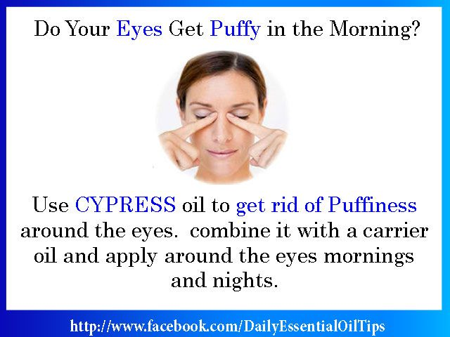 Apply Cypress Essential Oil To Get Rid Of Puffiness Around