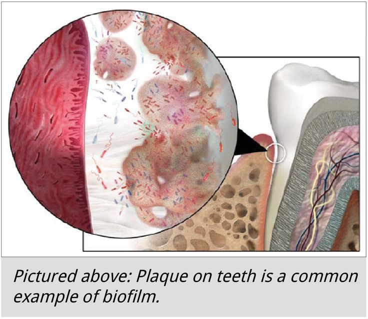 how to get rid of plaque on your teeth