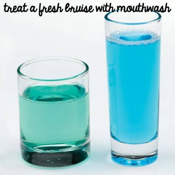 Treat Bruises with Mouthwash - 40 DIY Beauty Hacks That Are Borderline Genius40 Diy, Beauty Hacks, Diy Crafts, Treats Bruises, Borderline Genius, Diy Beautiful, Diy Beauty, Fresh Bruises, Beautiful Hacks