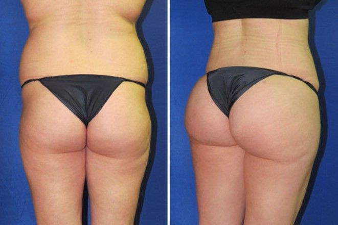 Your Butt Shape Shows Your Personality - Page 2 of 5 - Your Daily Viral Digest