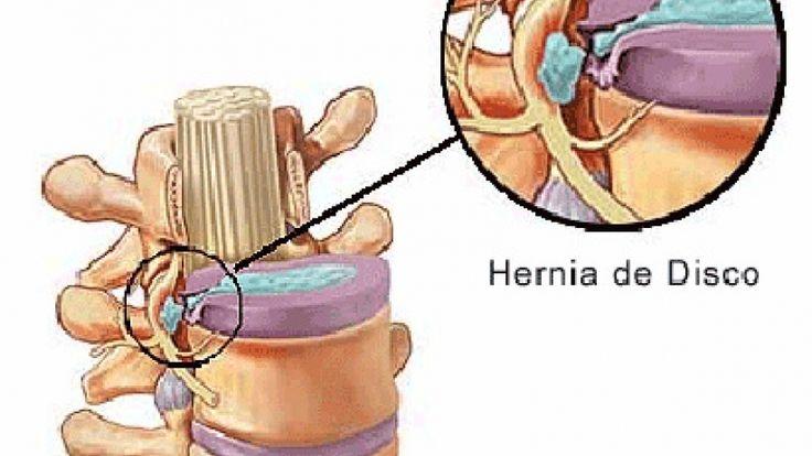 hernia discal - Buscar con Google