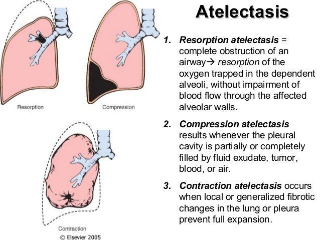 144 best images about plíce on pinterest | respiratory system, Cephalic Vein