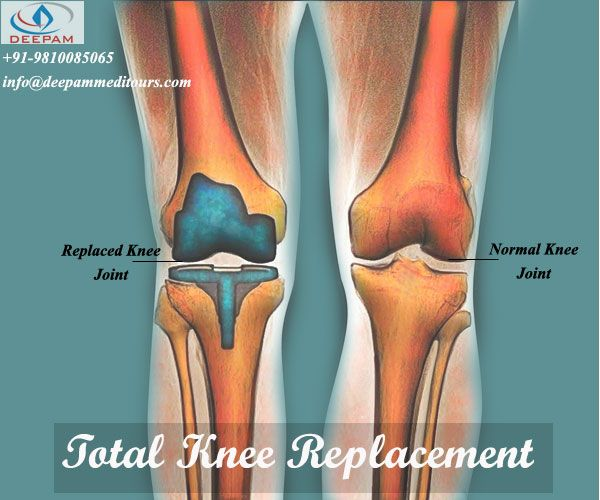 """""""Your chance to get back to your Track""""  Looking for treatment in India.... We are here to help you... !! Because we CARE !! connect with deepam meditours #total_knee_replacement #orthopedic #Knee_replacement #orthopadic"""
