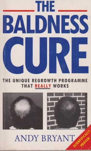 15 best Hair Loss Books images on Pinterest | Book, Books and Hair ...