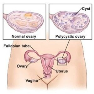 5 Effective Diet Tips For Polycystic Ovarian Syndrome