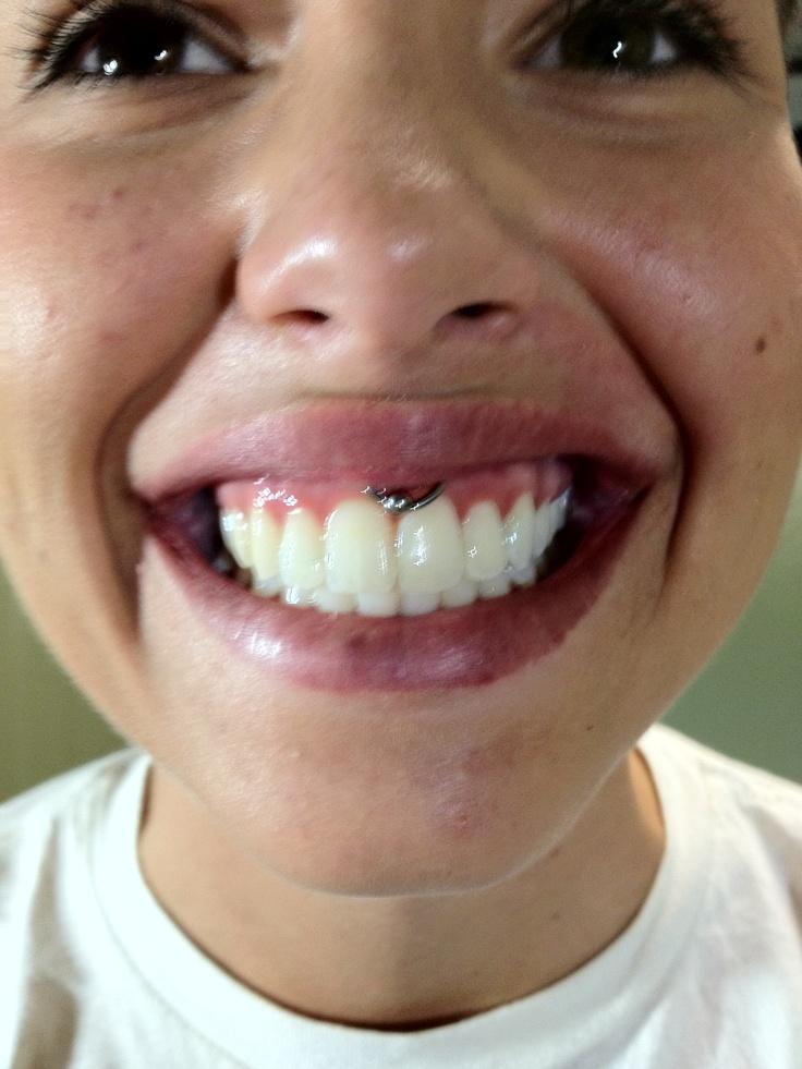 Smiley #piercing #body piercing | Piercings | Smiley ...