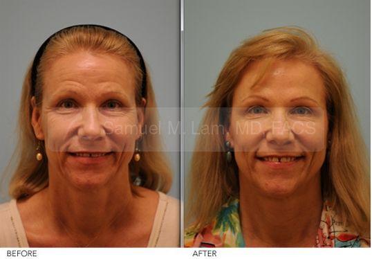 Short Term Botox Result - Botox Procedure Photos By Dr Samuel Lam @Lamfacialplastics #Lamfacialplastics #Drsamlam #Plasticsurgery #Dallasplasticsurgeon #Facialrejuvenation #Botox