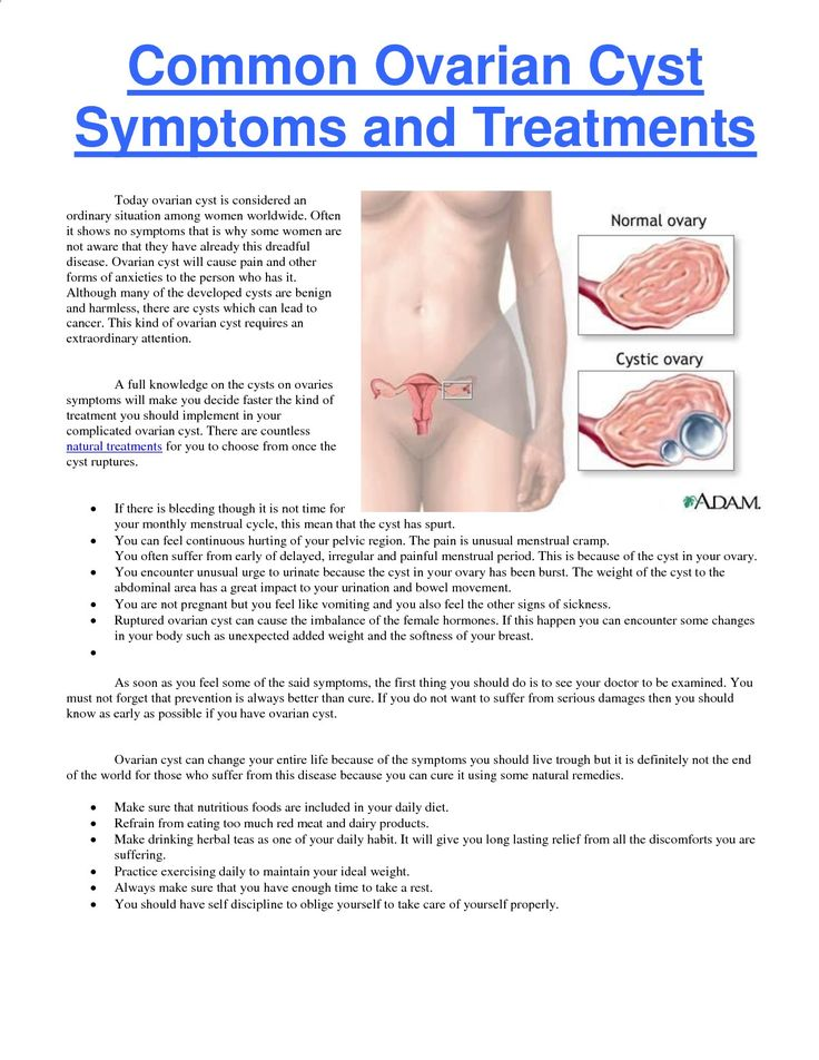 the cause effects treatment and medication of ovarian cysts among women Ovarian cysts that cause symptoms or size and number of cysts, among other factors many women have prompt diagnosis and treatment of ovarian cysts can.