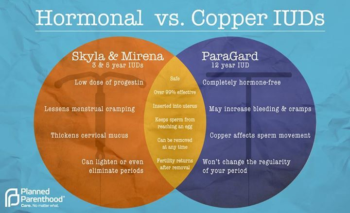 smithpse:pplm:Get the facts - here's what you should know about hormonal vs. copper IUDs (IntraUterine Device)(left=copper, right=hormonal)(IUD location in body)  IUDs may cause cramping and bleeding for a little while after you first get one, but they're extremely effective birth control.