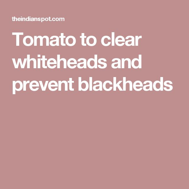 Tomato to clear whiteheads and prevent blackheads