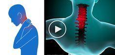 Wie du in nur 90 Sekunden, auf natürliche Art, einen steifen Nacken loswerden kannst