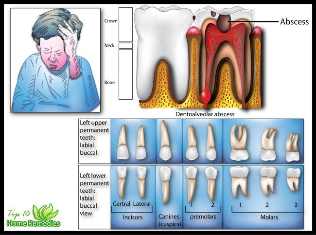 Natural Remedies to helo Toothache http://www.top10homeremedies.com/home-remedies/home-remedies-for-toothache.html
