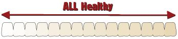 Top 10 Questions – Answers: Healthy Teeth – Family Dental Care #dental #questions http://dental.remmont.com/top-10-questions-answers-healthy-teeth-family-dental-care-dental-questions-2/  #dental questions # Top 10 Questions Answers How does sugar damage your teeth? Sugar acts like an acid dissolving the enamel on teeth. Each time you eat a snack containing sugar, the resulting acid attack can last up to 20 minutes. The naturally-occurring bacteria in the mouth use sugar as energy to multiply…