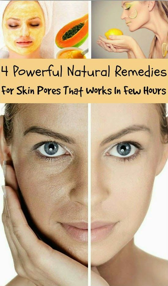 Skin Care And Health Tips: 4 Powerful Natural Remedies For Skin Pores That Works In Few Hours..!! #jewelexi #skincareandtreatments
