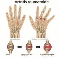 La artritis reumatoidea es una enfermedad inflamatoria, que afecta principalmente a las articulaciones y los tendones. Una articulación inflamada se ve hinchada y roja, y parece tibia al tacto. La enfermedad por lo general comienza en las muñecas, las manos o los pies, y puede extenderse a otras articulaciones y otras partes del cuerpo. No existe una cura para la artritis reumatoidea, pero el tratamiento para aliviar los síntomas es eficaz. ¿Qué la causa? No se sabe por qué se produce la…