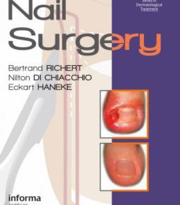 Nail Surgery PDF