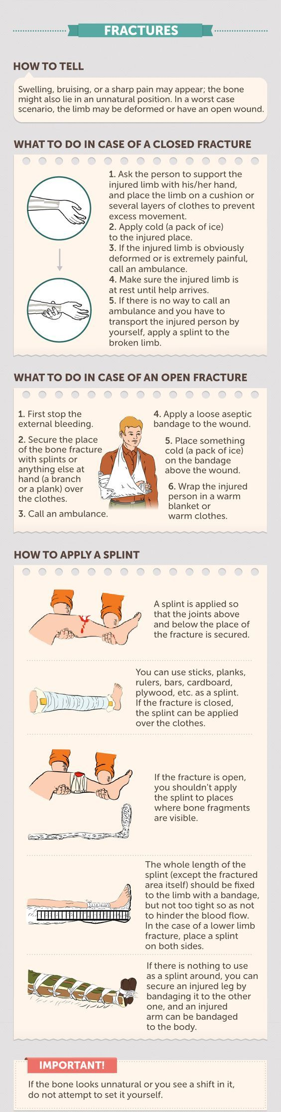 First Aid for Fractures. This chart will show you what to do in case of a closed or open fracture and also how to apply a splint.   In case of any fracture, you can use a SAM Splint, a first aid item that makes a temporary cast for injuries to ensure that the broken bones don't move the wrong way and exacerbate the problem. If you want to learn more, read this full article: http://insidefirstaid.com/personal/first-aid-kit/splinting-bone-fractures-with-a-sam-splint #first #aid #fracture…