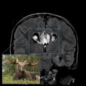 The moose head appearance refers to the lateral ventricles in coronal projection in patients with dysgenesis of the corpus callosum. The cigulate gyrus is everted into narrowed and elongated frontal horns.   An alternative name is the viking helmet sign.