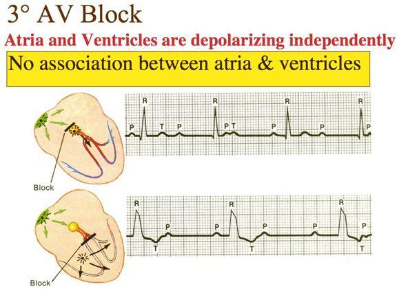 Third degree AV block (complete block)