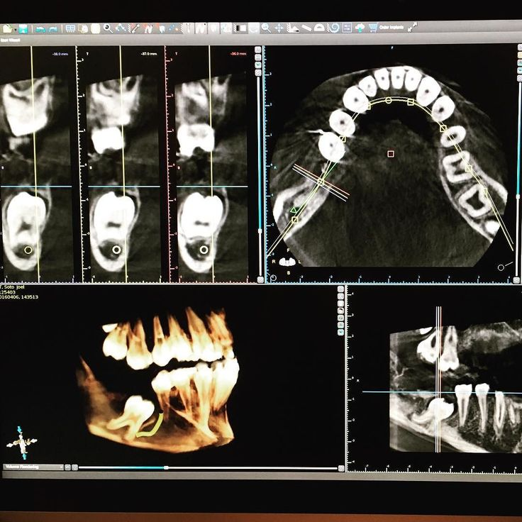 Impacted lower right first molar. There are multiple reasons which may lead to teeth becoming impacted. In this case patient has an odontoma (extra mineralized cluster) which is overlying the tooth in question. This mineralized cluster prevented the natural eruption of the tooth. First step is to properly diagnose and plan the case. Beginning with the end in mind is crucial in these types of problems. My brother @dr_izzy_ and I are working on this case together. I'll be exposing the tooth…