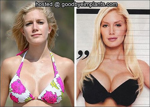 Source: goodbyeimlants.com   Boost your cup size within six weeks for 2 cup sizes? check out, 100% safe method, here http://womendesire.tk/your/breastenlargementpin #breastenlargement