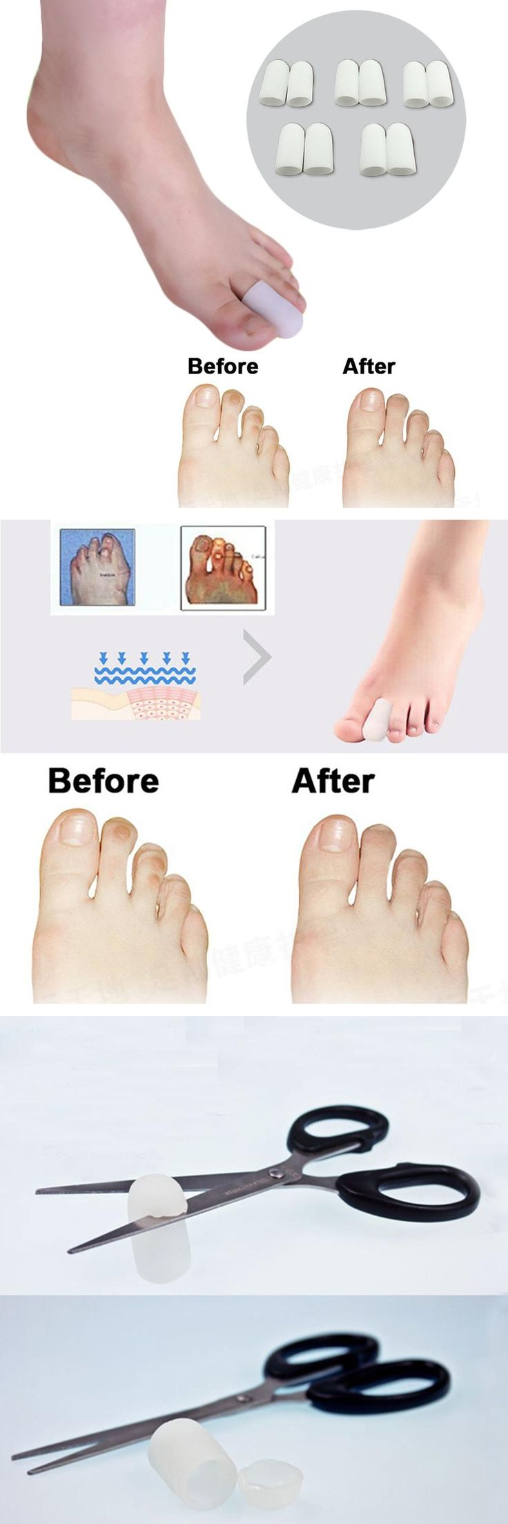[Visit to Buy] 10pcs Toe Sleeves Toe Protectors for Bunions Sore Corns Calluses Prevent Corn Callus Blister Soften and Soothe the Skin S002 #Advertisement