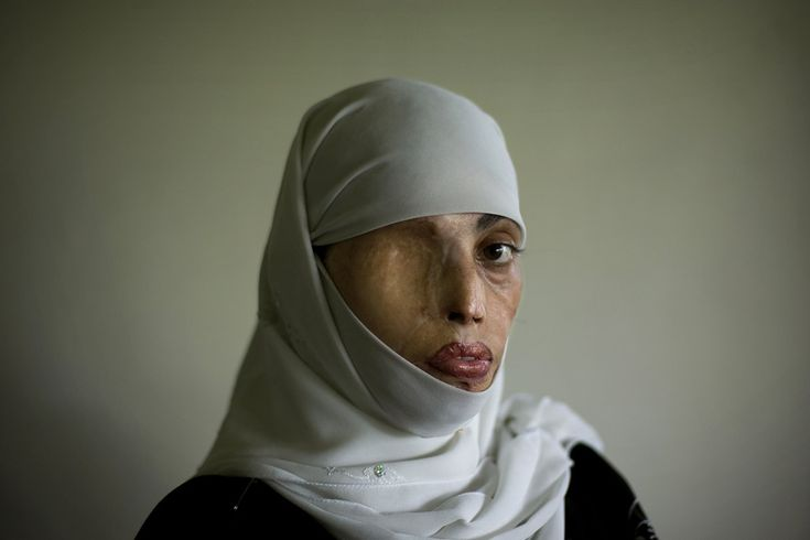 Irum Saeed, 30, poses for a photograph at her office at the Urdu University of Islamabad, Pakistan, Thursday, July 24, 2008. Irum was burned on her face, back and shoulders twelve years ago when a boy whom she rejected for marriage threw acid on her in the middle of the street. She has undergone plastic surgery 25 times to try to recover from her scars.