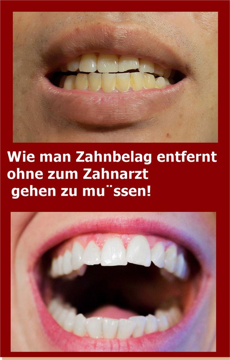 Wie man Zahnbelag entfernt ohne zum Zahnarzt gehen zu müssen! | njuskam!