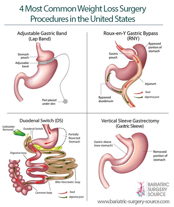 The types of bariatric surgery you should consider depend on a number of factors, including how much weight you want to lose, which health problems you are looking to improve, risk level and cost.