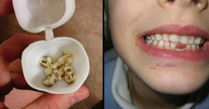 Çocuğunuzun Süt Dişlerini Asla Atmayın! Anneler Mutlaka Okuyun Bakın Gelecekte Ne İşe Yarayacak