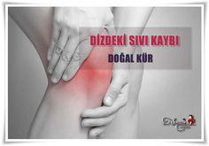 Dizdeki Sıvı Kaybı İçin Doğal Kür  Dizde conta görevi gören sürtünmeyi sağlayan en önemli etken olan sıvı azaldığında sürtünme olur ve ağrılar başlar. Dizdeki Sıvı Kaybı İçin 2 Farklı ve çok etkili doğal kür tarifi veriyoruz. ⤵ http://www.sosyetikcadde.com/dizdeki-sivi-kaybi-icin-dogal-kur/  www.sosyetikcadde.com