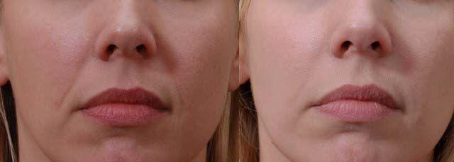 Santurile nazo-labiale sunt acele zone care pornesc lateral de aripa nazala si merg pană la coltul gurii, iar mai jos se continua cu ''Marionette lines'', liniile ce coboara din coltul gurii si creeaza umbre, dand senzatia de fata trista, obosita.  Injectarea cu acid hialuronic are efect de umplere, de intindere, cu un aspect proaspat! Noi va propunem: 1 ML Acid Hialuronic gama Princess la 700 LEI (include consultatia, anestezia, si recomandarile post interventie) Informatii la 0724 269 229