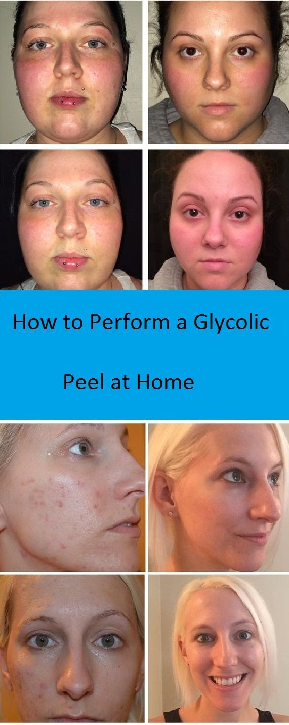 Glycolic peels can be used by both men and women. It is also safe for use by individuals with sensitive skin. With its mild effect, it is recommended as a great starter peel. If you feel like you are not yet ready for deep chemical peeling but want to achieve a beautiful change anyway, you can start with this solution. This article is going to guide you through the process and also give you a couple of homemade recipes if you decide to go that route.
