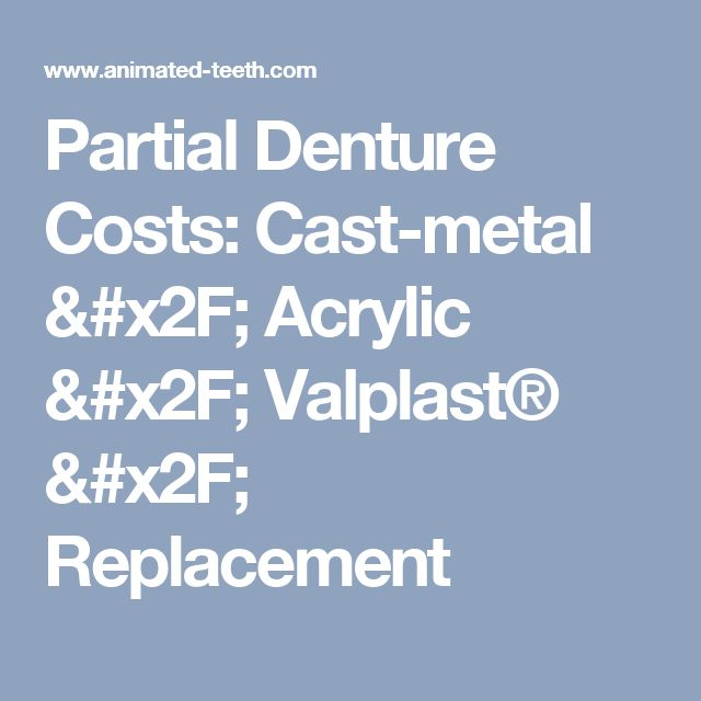 Partial Denture Costs: Cast-metal / Acrylic / Valplast® / Replacement