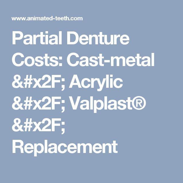 Partial Denture Costs: Cast-metal / Acrylic / Valplast® / Replacement