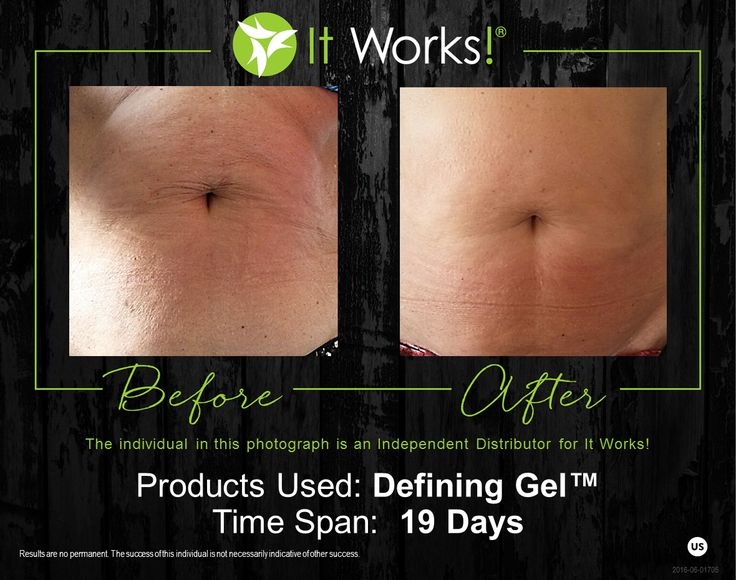 Luxurious hydration meets contouring results with this favorite It Works! product.  Defining Gel is an intensive skin care gel that deeply hydrates while firming areas such as the abdomen, back, legs, and upper arms. It's the perfect companion to our Ultimate Body Applicator.