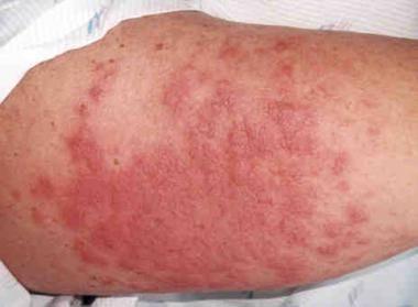 Skin Signs of Graft Versus Host Disease