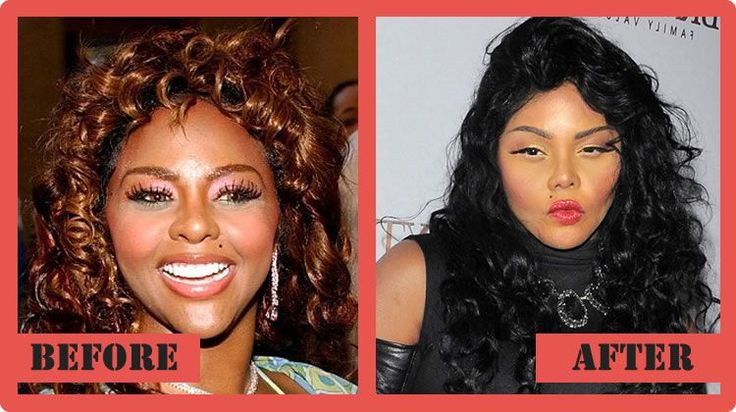 Lil Kim Plastic Surgery Before And After Lil Kim Plastic Surgery #LilKimPlasticSurgery #LilKim #celebritypost