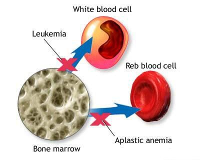 Aplastic anemia is a rare disease in which the bone marrow, and the hematopoietic stem cells that reside there, are damaged.... http://www.natural-health-news.com/aplastic-anemia-causes-symptoms-diagnoses-and-treatment/