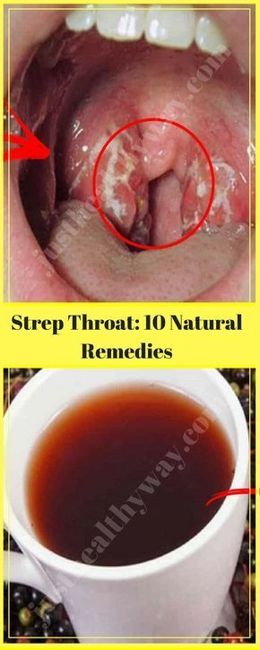 The pain due to a strep throat, a bacterial infection that causes pain and swelling of the throat, is extremely intense and uncomfortable.