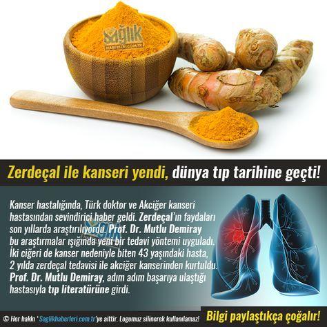 Kanser hastalığında Türk doktor ve Akciğer kanseri hastasından sevindirici haber geldi. Zerdeçal'in faydaları son yıllarda araştırılıyordu. Prof. Dr. Mutlu Demiray bu araştırmalar ışığında yeni bir…