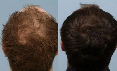 Natural hair restoration, for a revisit to the fountain of youth!