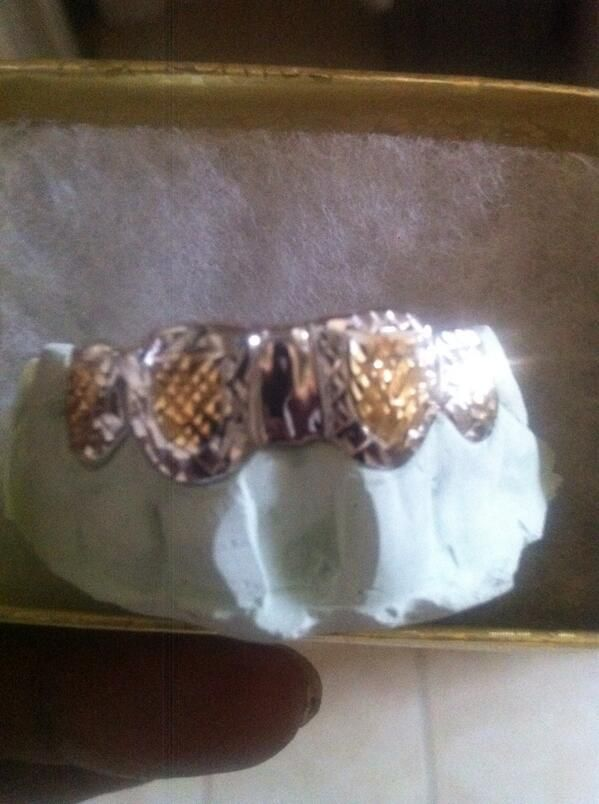 2 tone white gold grillz with yellow gold tone diamond cuts.. Custom removable goldteeth www.Twitter.com/chigrillz  Http://www.chi-grillz.com & http://www.chigrillz.com