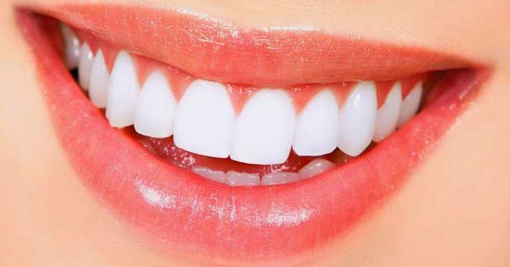 Conheça nove métodos caseiros de clarear os dentes naturalmente. Saiba como branquear os dentes com ingredientes naturais.