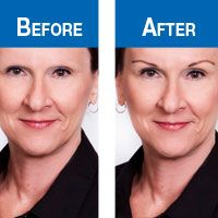 <b>Eye Brow Stencils </b>for chemo-caused eyebrow loss for cancer patients from the American Cancer Society's TLC.